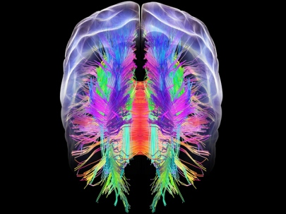 brain-image-by-general-physics-lab-creative-commons